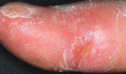 Sclerodermie of systeemsclerose