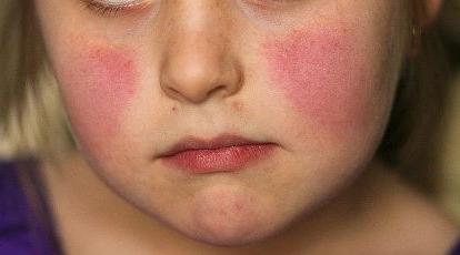 huidz-5e-kinderz-Erythema-infect-02-19.jpg