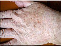 lentigo-hand-150.jpg