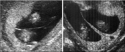 mono-dichoriale-placenta-echo-2.jpg