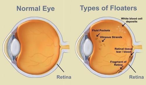 oog-anatom-floaters-500.jpg