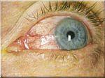 oog-rosacea.jpg