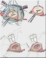 operatie-hartklep.jpg