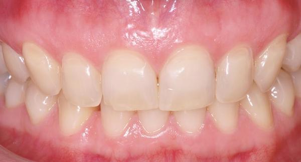 Tandvleesontstekingen of gingivitis: als uw tanden bloeden