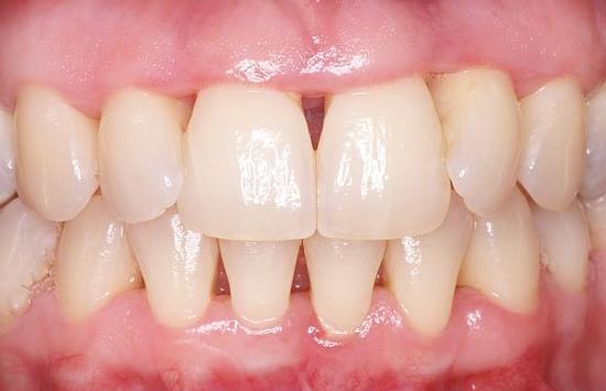 parond-gingivitis-tandst-na-beh-2.jpg