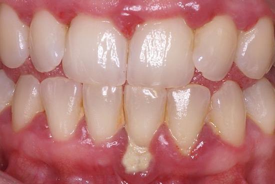 parond-gingivitis-wortels-600.jpg