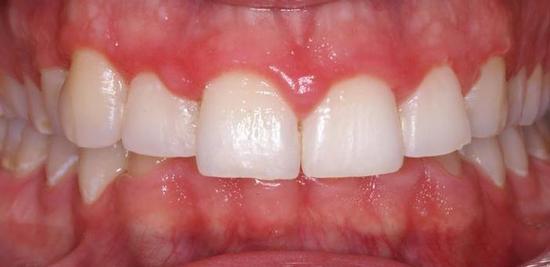 parond-gingivitis.jpg