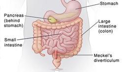 Het Meckel divertikel: een embryonaal overblijfsel in de dunne darm
