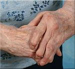 reumatoide-arthritis-handen-4-180.jpg