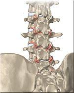 rug-artritis-150.jpg