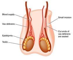 sterilis-testis-250.jpg