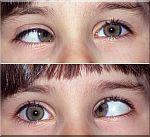 strabismus-2-ogen--.jpg