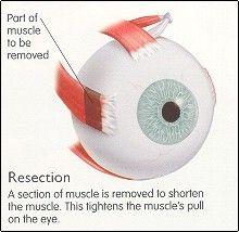 strabismus-operatie.jpg