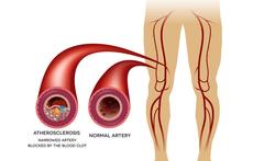 Perifeer arterieel vaatlijden (PAV) of 'etalagebenen'