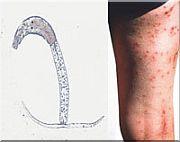 trichobilharzia-beten-been-180.jpg