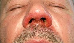 Impetigo of krentenbaard: bacteriële huidinfectie