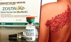 Wie moet zich laten vaccineren tegen zona: Nieuw advies Hoge Gezondheidsraad
