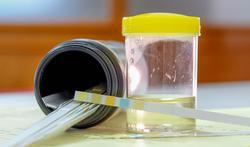 Une analyse d'urine pour savoir si vous mangez correctement