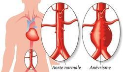Anévrisme de l'aorte abdominale : qui est à risque ?