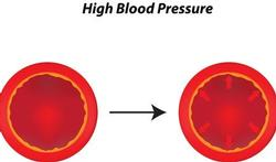 123-anat-hoge-bloeddruk-bloedv-05-16.jpg