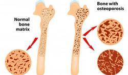 Bereken je fractuurrisico door osteoporose met de FRAX-methode