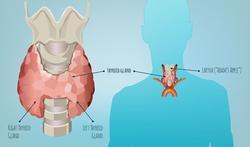 Hoe herken je een te trage schildklier of hypothyreoïdie?