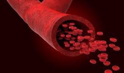 Vidéo - L'hémophilie