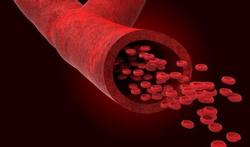 Vitamine D : le médecin de vos artères