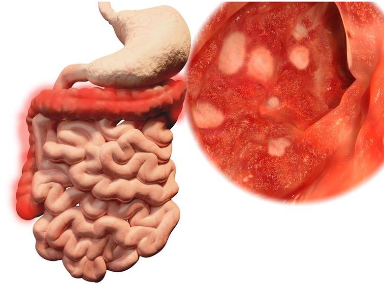 123-anatom-colitis-ulcer-dikke-darm-03-19.png