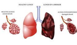 Ook verhitte tabak bevat schadelijke stoffen