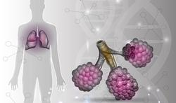 Wat is Extrinsieke Allergische Alveolitis (EAA) en hoe ontstaat het?