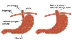 Een maagbreuk of hernia van het middenrif