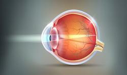 Serosa of centrale sereuze chorioretinopathie: mysterieuze oogziekte door stress