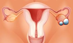 Wereld Eierstokkankerdag (World Ovarian Cancer Day)