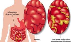 Buikvliesontsteking of peritonitis