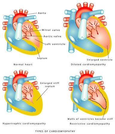 123-anatom-soorten-cardiomyopathie-06-16.jpg