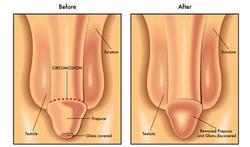 Beschermt besnijdenis tegen SOA?