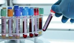 123-bloed-tubes-labo-170-01.jpg