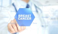10.000 vrouwen gezocht voor onderzoek om borstkankerscreening in de toekomst te personaliseren