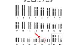 123-chromos-trisomy-21-karyotype-12-18.png