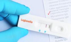 123-diagn-legionella-labo-06-19.png