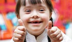 Vidéo - La trisomie 21 (syndrome de Down)