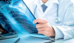 Vidéo - Mucoviscidose : causes, symptômes, traitement
