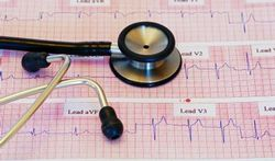 Screening van gezonde personen redt weinig levens