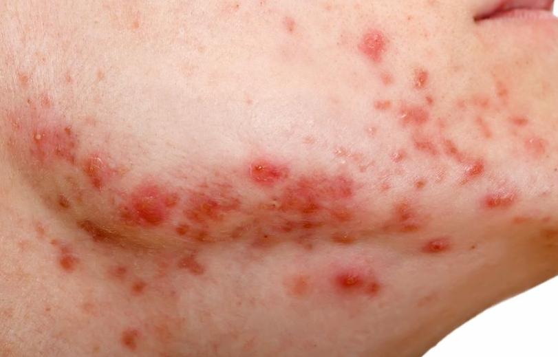 123-ernstige-acne-10-18.png