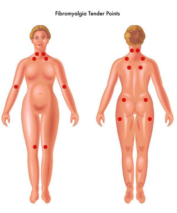 123-fibromyalgie-tenderpoints-05-18.jpg