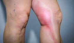 Hoe herken je een aderontsteking (flebitis) en hoe wordt het behandeld?