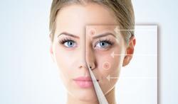 Wat is jouw huidtype en wat is daarvoor de gepaste gezichtsverzorging?