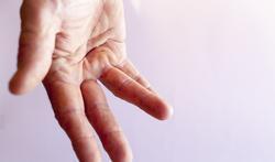 Kromme vingers / Ziekte van Dupuytren