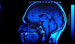 Bilingues : un cerveau mieux protégé